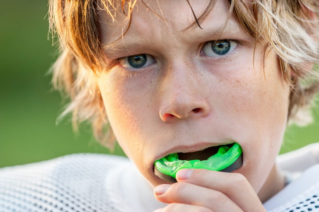 dental sports guard toronto